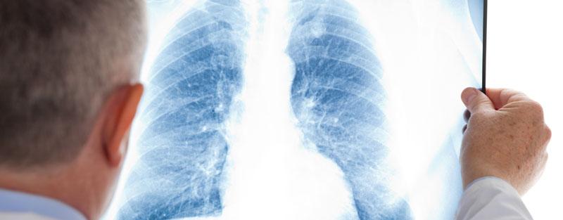 asma, radiografía